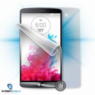 ScreenShield fólie na celé tělo pro LG D722 G3s